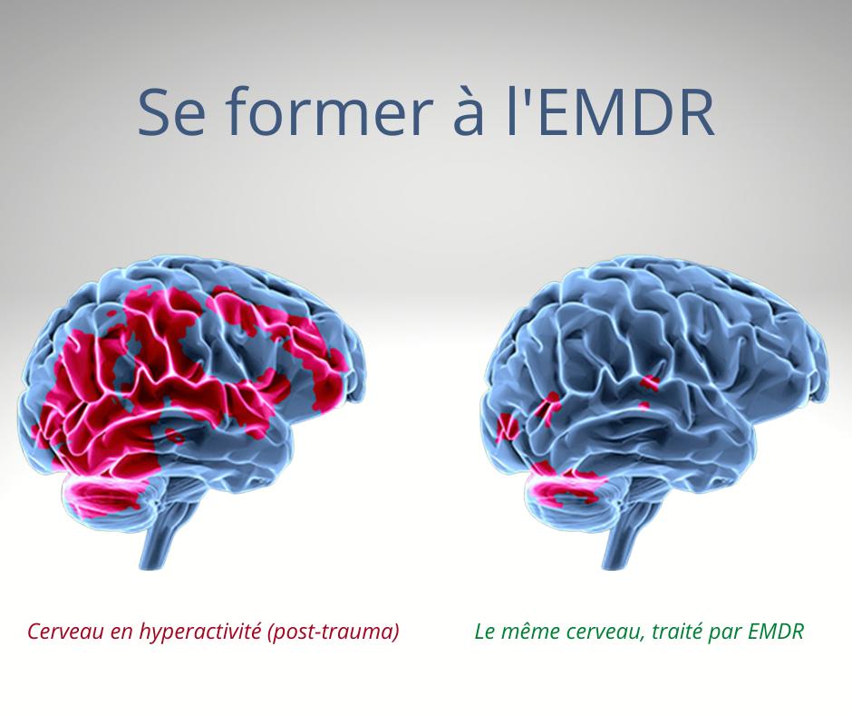 Savez vous ce qu'est l'EDMR ?